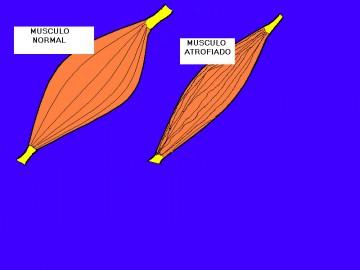 3)MusculoNormAtrof